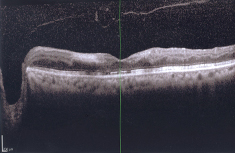 Retina after Injected Lucentis